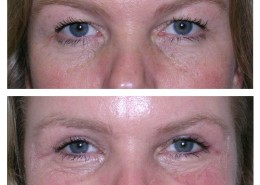 Upper Eyelid Blepharoplasty (Eye Surgery)