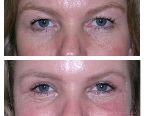 Upper Eyelid Blepharoplasty (Eye Surgery)