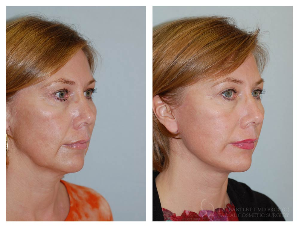 Picture of facial liposuction