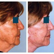 Facelift & Liposuction