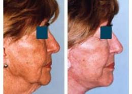 Facelift & Liposuction