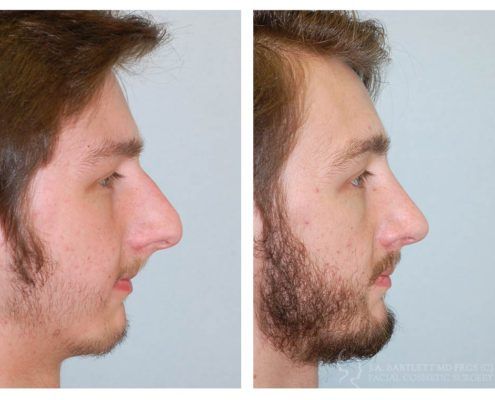 External Rhinoplasty- 1 year post op