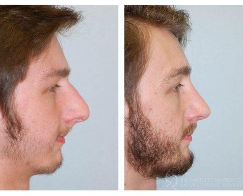 External Rhinoplasty- 1 year post op