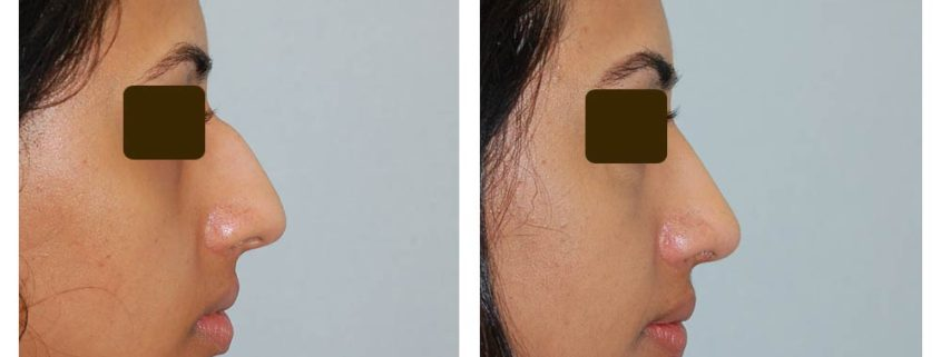 External Rhinoplasty at 4 months