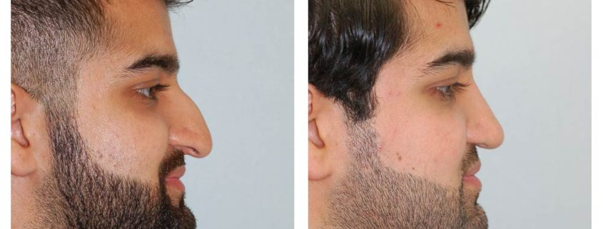 External Rhinoplasty - 8 months post op