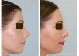 External Rhinoplasty- 5 months post op