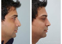 Before and after pictures of an endonasal rhinoplasty (nose job) performed by cosmetic surgeon Dr Andrew Bartlett, in Vancouver
